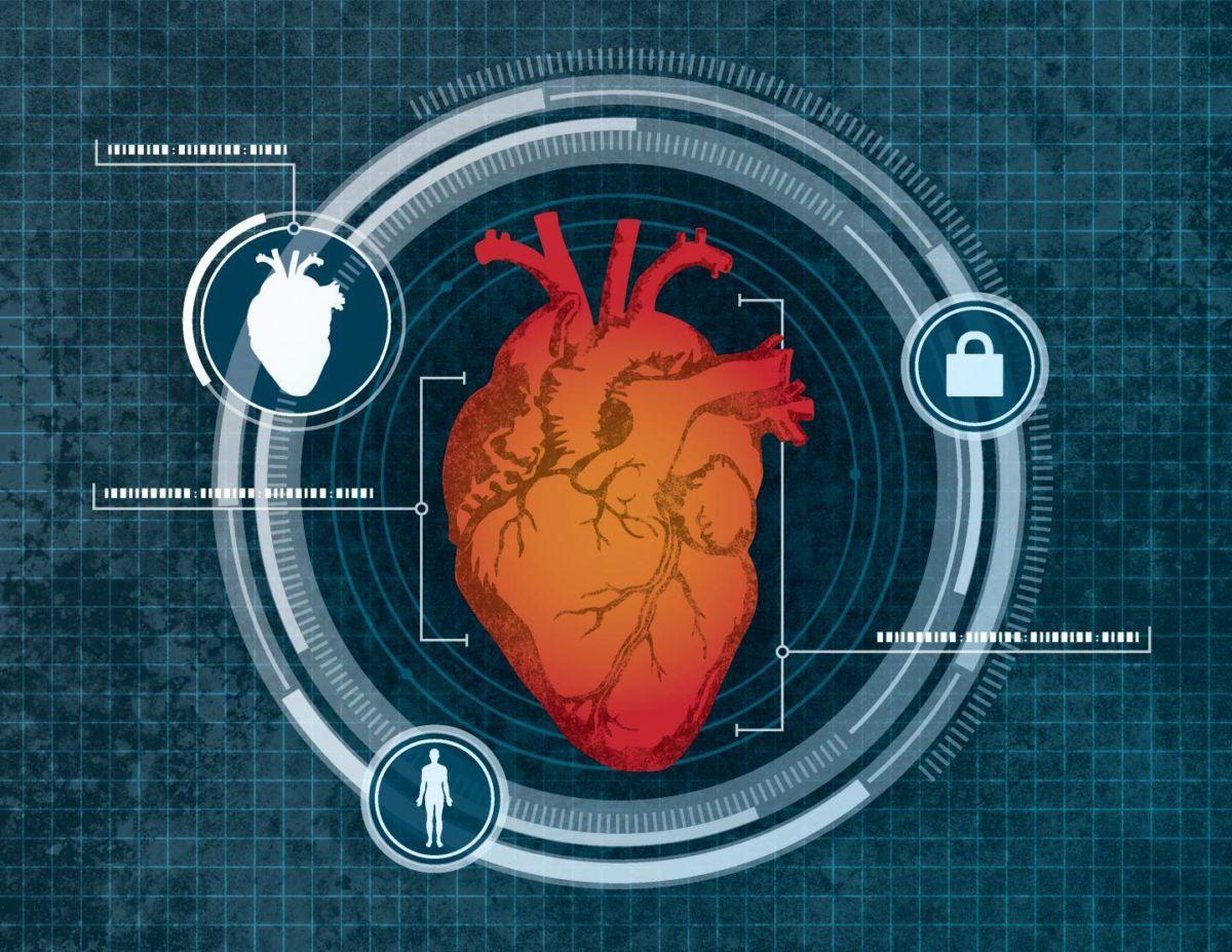 сканування серця